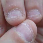 爪を噛む人の性格の共通点…ちょっと危険な特徴が実験研究で明らかに…