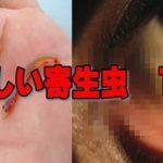 最も恐ろしい地球上の寄生虫10選…もしも寄生されたらヤバい…
