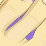 巻き爪で足先が痛む時の対処法…自宅で手軽にできる対処法が話題に…