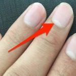 爪に白い部分(爪半月)はありますか?ある人とない人の違いが話題に…