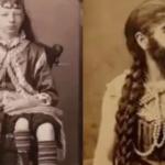 19世紀に大人気だったフリークショー…世界に衝撃を与えた人たちの写真が話題に…