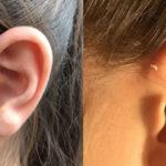 100人に1人が持つ耳の付け根の穴…あまり知られてない耳瘻孔の本当の意味…