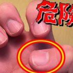 爪に縦の線があると…意外と知らない見逃しがちな体が発しているSOSサイン5選…