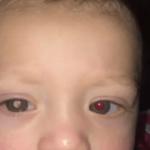 写真で白く光る眼に隠された病気…危険な病気のサインかも・・・
