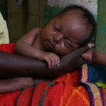 奇病のため隠されるように育てられた赤ちゃん…22年後の彼女の姿が話題に…