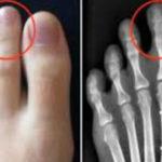 足の人差し指が親指より長い人は要注意…特に子供の場合こんな危険が…