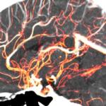 人は頭を切り離された後、どれだけ意識があるのか?科学的に検証した結果が話題に…