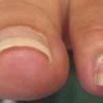 皮膚科医が教える正しい爪の切り方…その切り方危険かもしれません…