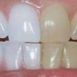 身近なもので歯をホワイトニングする3つの方法…簡単に試せると話題に…