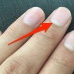 爪半月の大きさが人によって違う秘密…爪の白い部分が小さい人は危険!?