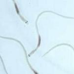 ヒトから採取した精子を適温の水槽に入れて育てると…?想定外の結果に…